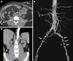 evaluation of potential renal transplant recipients with computed
