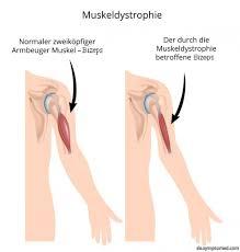 muskelschwäche symptome - Muskelschwäche