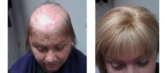 thinning hair in women on top of head top partial systems female pattern baldness shears to you salon