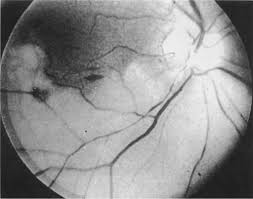 Map Dot Dystrophy Ophthalmology Diseases Of The Eye Basicmedical Key