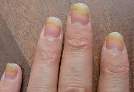 Salep Jamur Kuku jamur kuku ciri penyebab dan cara pengobatannya
