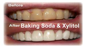 how to use baking soda for white teeth around the world with 6