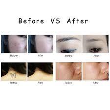 konmison laser freckle tattoo removal picosecond pen skin mole