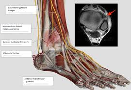 Anterior Distal Tibiofibular Ligament Ankle Coachingultrasound