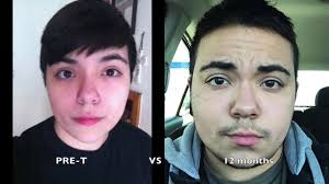female to male transgender 12 months on testosterone injections