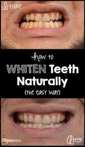 Teeth Whitening Colorado Springs Best 25 Is Teeth Whitening Safe Ideas On Pinterest Ok Soda