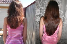 best homemade hair mask ideal and easy solution for hair loss and