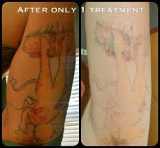 the 25 best tattoo removal prices ideas on pinterest failblog
