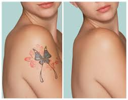 tattoo removal options in low cost