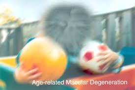 Blind Spot In Left Eye Age Related Macular Degeneration Uw Medicine