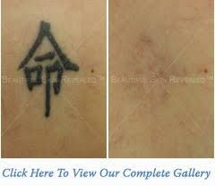 laser tattoo removal houston texas tx new york ny