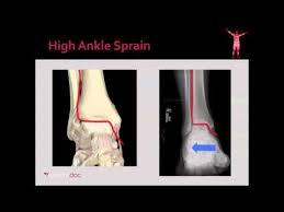 High Ankle Sprain Anatomy High Ankle Sprain U0026 Syndesmosis Injury Foot U0026 Ankle