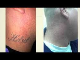 tattoo removal houston cost best tattoo 2017