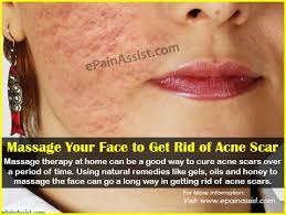 how to colour in a scar in your hairline your face to get rid of acne scars