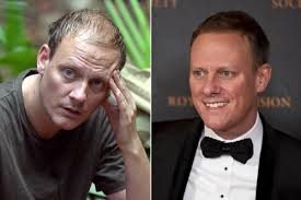 antony cottons hair transplant corrie on combing does antony cotton s thicker thatch mean had a