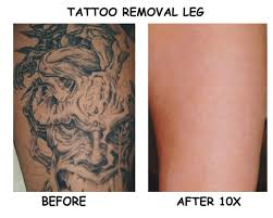 laser tattoo removal the cynosure picosure laser