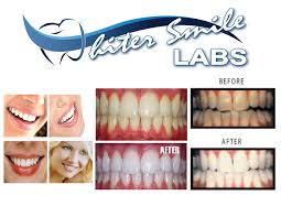 amazon com home teeth whitening kit whiter smile labs 38 dentist