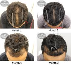 Natural Hair Growth Remedies For Black Hair How To Grow African American Hair In 3 Months New Hair Style