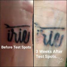 intense pulsed light tattoo removal amazing the best tattoo removal creams forgived me