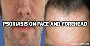 how to manage a ver low hairline how to manage psoriasis on face and forehead psoriasis self