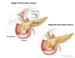 Is Hair Loss A Sign Of Cancer Pancreatic Cancer Treatment Pdq U2014patient Version National
