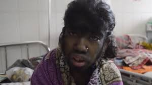haitr style for thick black hair 65 years old 12 year old girl suffers from werewolf syndrome covered in