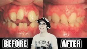 Braces Meme - bad teeth before after braces youtube