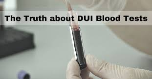 Challenge Blood Can You Challenge A Dui Blood Test Judnich Office