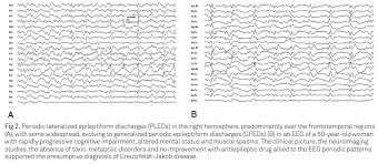 quasi periodic pattern definition periodic eeg patterns importance of their recognition and clinical