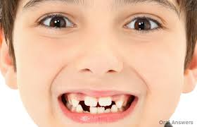 Natural Ways To Whiten Your Teeth Mamelons The Bumps On Your Child U0027s Permanent Teeth Are Normal