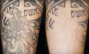 manchester tattoo laser removal