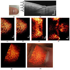 osa phase stable swept source oct angiography in human skin