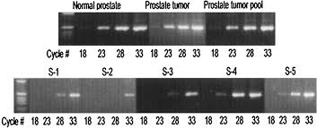 identification of differentially expressed genes in human prostate