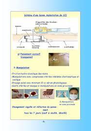 rincage pulsé chambre implantable abord veineux de longue durée chambre à cathéter implantable