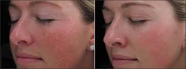 intense pulsed light review intense pulsed light ipl renew laser skin clinicrenew laser