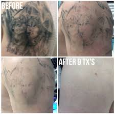tattoo removal tattoo removal calgary nw picosure tattoo removal