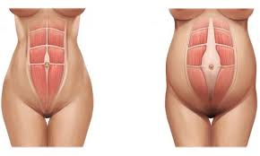 stomach muscles after c section healing abdominal muscles after pregnancy midwifery traditions