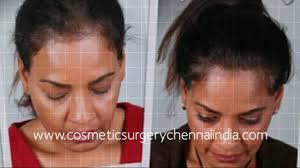 stop womens chin hair growth how to grow hair how to reduce hair fall how to stop hair fall