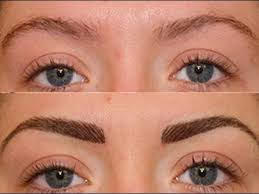 hair transplant costs in the philippines eyebrow transplant youtube