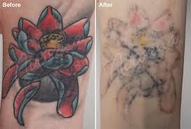 tattoo removal nirvana laser hair and skin