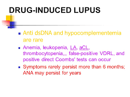 Testing Report Sle by Systemic Lupus Erythematosus Ppt