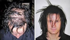 dermmatch hair loss concealer hairloss photo gallery