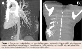 Radiology Of Thorax Embolization Of A Chest Wall Arterial Venous Malformation Using A
