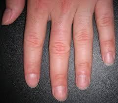 fingernail disorders fingernail disorders treatment fingernail