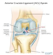 Anterior Fibular Ligament Anterior Cruciate Ligament Acl Sprain Rehab My Patient