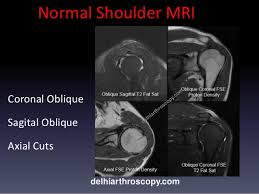 Axial Shoulder Anatomy Shoulder Mri Scan In Delhi By Dr Shekhar Shrivastav