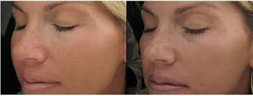 non surgical eye lift advanced dermatology