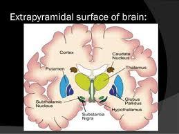 Substantia Nigra Picture Parkinsonism