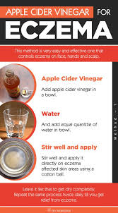 how to use vinegar to get rid of hair dye how to get rid of eczema using apple cider vinegar