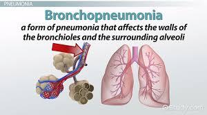 Human Anatomy And Physiology Terminology Tuberculosis U0026 Pneumonia Terminology Video U0026 Lesson Transcript